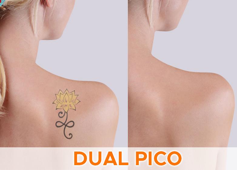 dual pico
